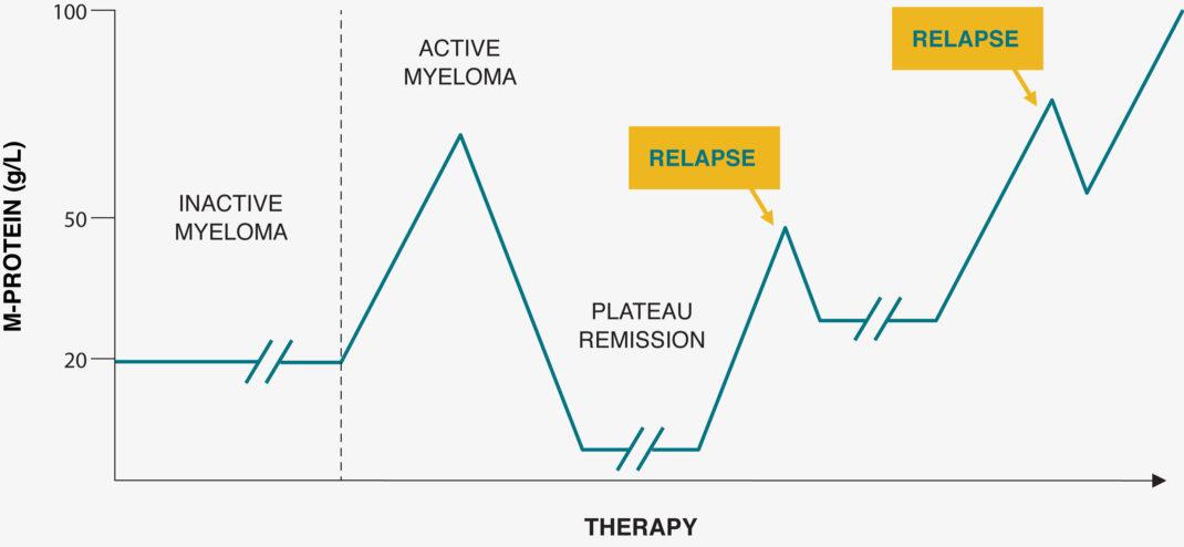 Relapsed Multiple Myeloma Treatment Journey